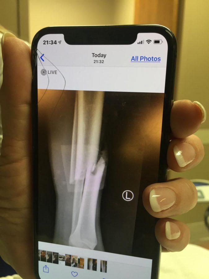 The+x-ray+depicting+the+break+in+Johnson%27s+leg.+Photo+courtesy+of+Deirdre+Nieves.+