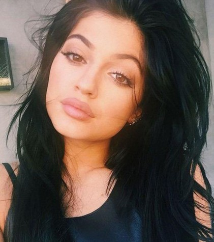 kylie-jenners-rumored-lip-injections-spark-talk