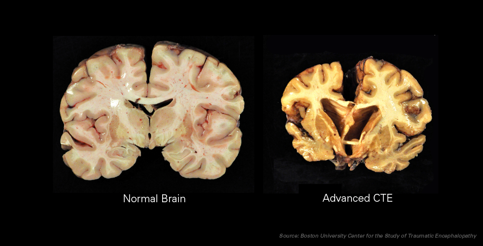 After the four principle stages of CTE take place, the human brain results in the brain on the right compared to that of a normal brain on the left. Photo credit: Ann McKee, MD, BU School of Medicine/VA Boston Healthcare System